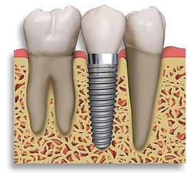Dental Implant Restoration Hunt Valley, MD